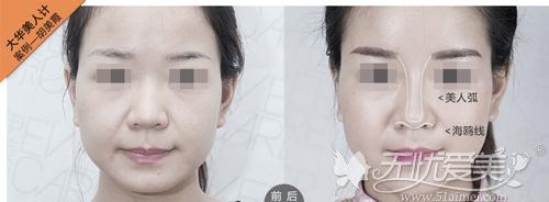 综合隆鼻前后对比案例