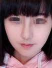 【案例】成都医美刘国权真人隆鼻1-7天恢复图 19800拥有翘鼻