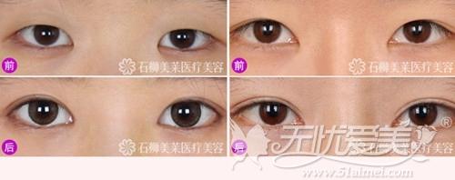 石狮美莱眼部精细化手术案例