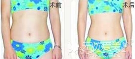 许艾在桂林美莱做吸脂手术前后对比照