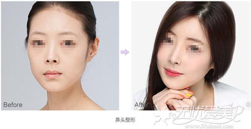 鼻头整形前后对比案例