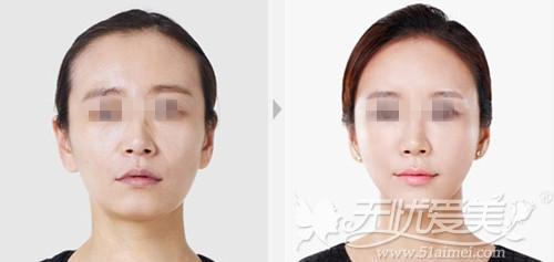上海美莱自体脂肪填充案例