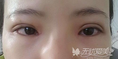 双眼皮过宽是失败的一种