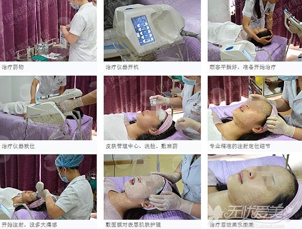 武汉爱思特水光瓷肌疗法过程