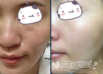 武汉爱思特韩国水光瓷肌疗法案例