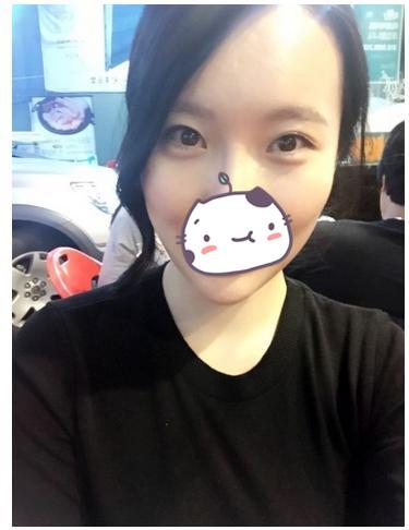 北京天使名源祛眼袋+注射瘦脸除皱案例