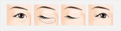 北京天使名源SOA专利祛眼袋法