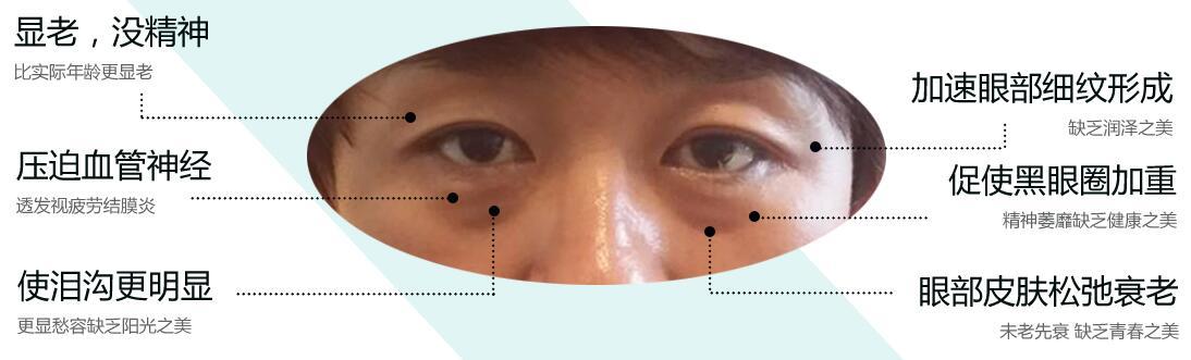 北京天使名源解析眼袋的困扰