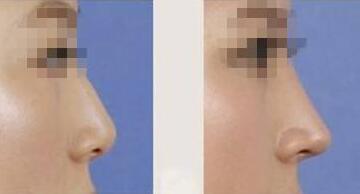 假体隆鼻效果图