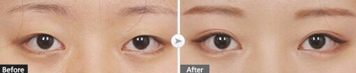 双眼皮手术案例图