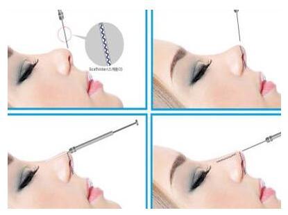 太原华美整形医院线雕隆鼻就是大家常用的一种隆鼻方法