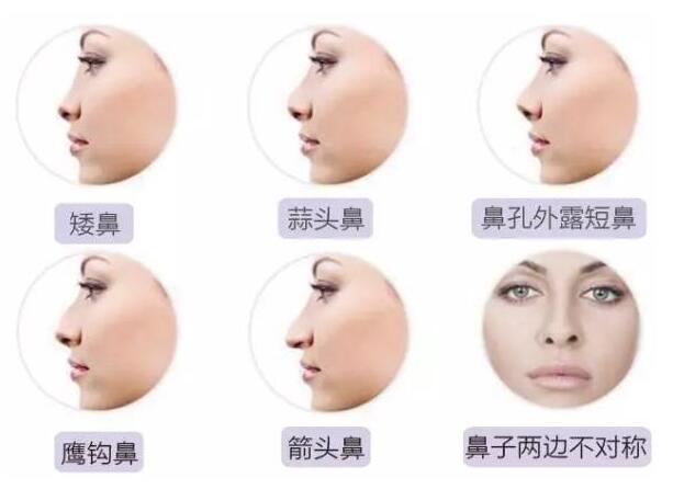 线雕隆鼻涵盖多种鼻型