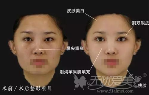 深圳艾妍达芬奇整形大师直接为你展示手术效果