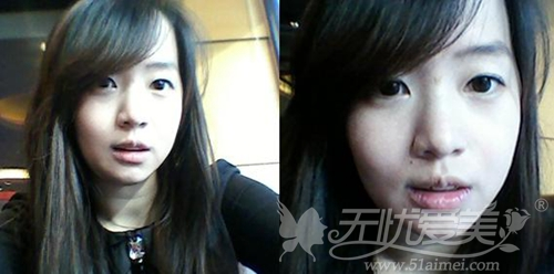 李念在韩国原辰整形外科做面部轮廓术后5周