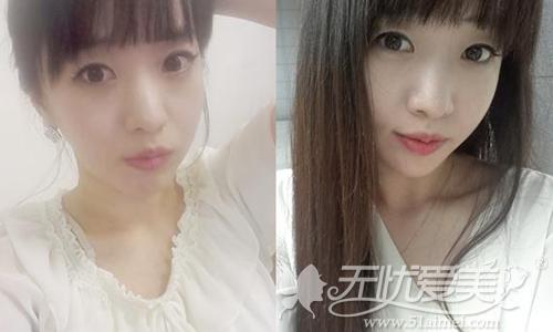 李念在韩国原辰整形外科做面部轮廓术后10周