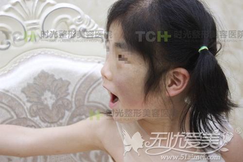 重庆时免费救治色素遗传患者