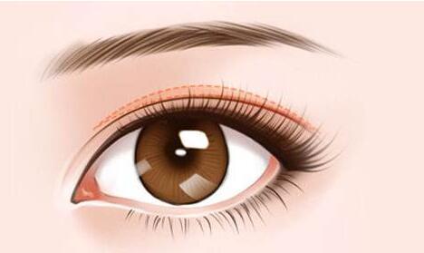 北京亚馨美莱坞双眼皮修复手术