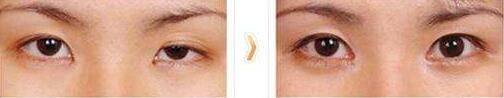 北京亚馨美莱坞双眼皮修复手术案例