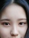 在西安华旗唯美做了全切双眼皮+开眼角 附术后两个月恢复图