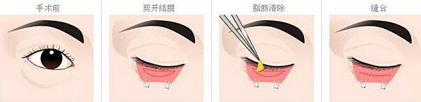北京亚馨美莱坞祛眼袋手术