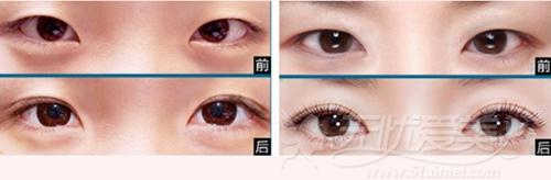 广州广美自然无痕双眼皮手术案例