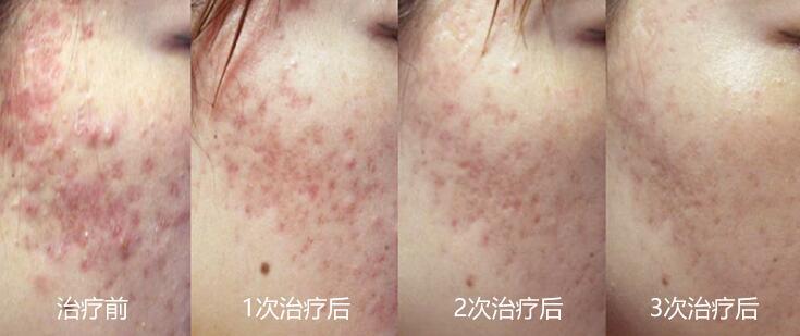 杭州格莱美祛斑祛痘效果对比图