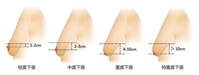 胸部下垂的各类情况