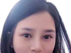 在成都武侯黄氏百佳医院【双眼皮+综合隆鼻】一个月照片