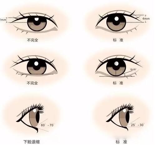 什么眼睛要开眼角图片