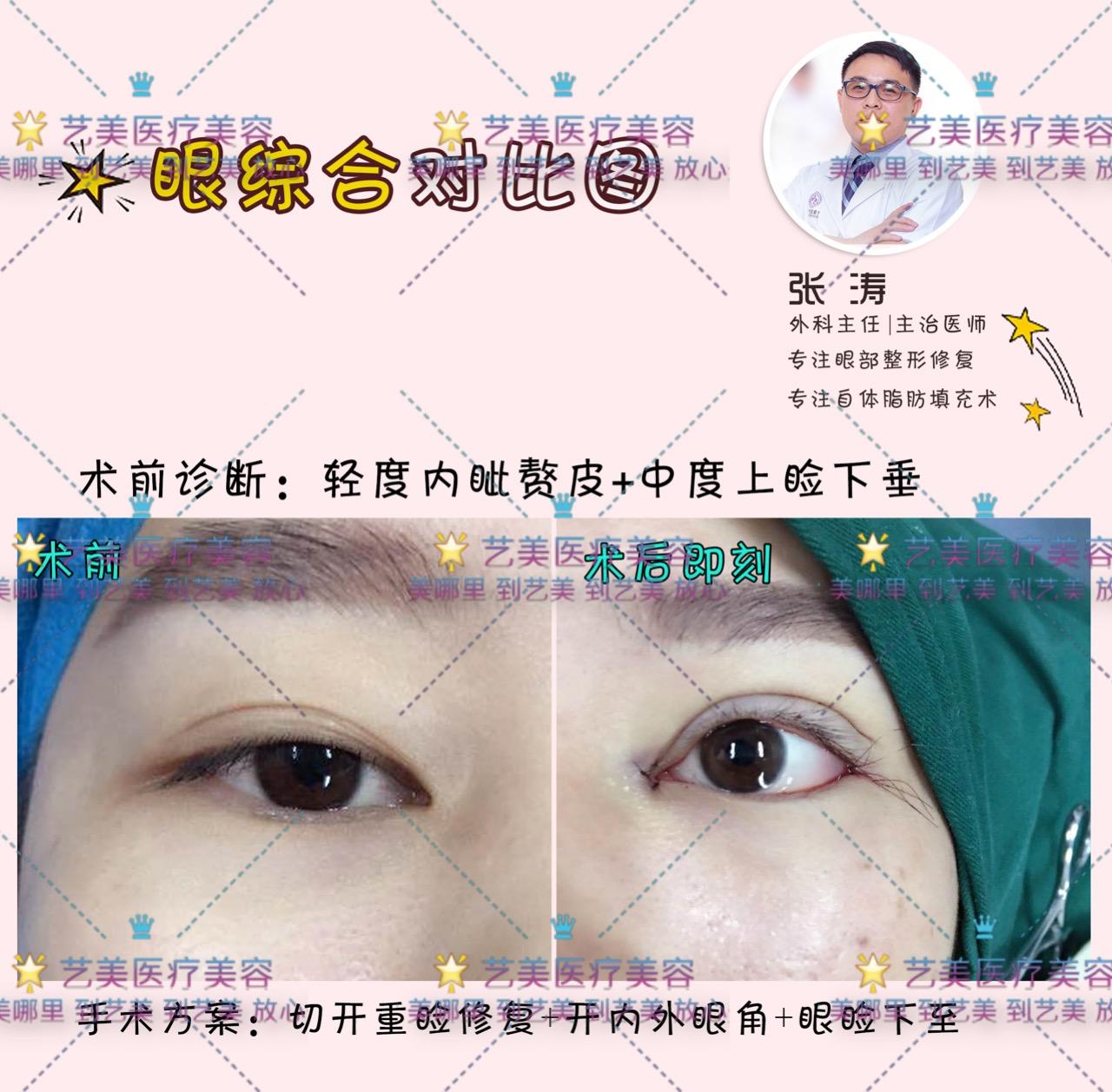 广州艺美医疗美容整形医院综合美眼