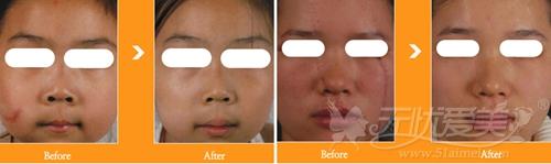 韩国童颜中心NEW超深脉冲冲击激光祛疤痕案例