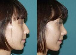 上海东方整形医院的隆鼻手术效果对比图