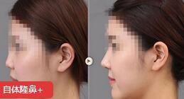 上海东方整形医院高档位的隆鼻手术效果对比图