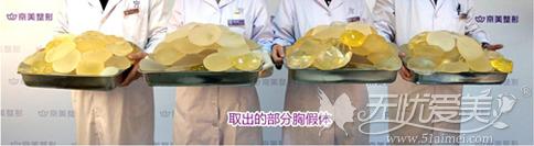 北京京美取出来的部分假体材料