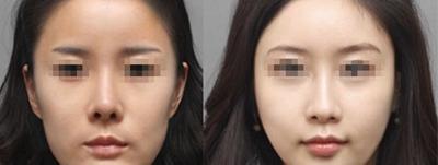 武汉艺星BSK宫廷隆鼻注重鼻尖塑型