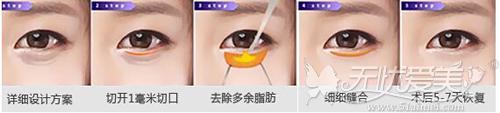 外切法祛眼袋