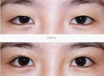 袁磊医生做双眼皮效果案例图