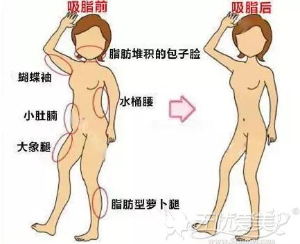 360°环形吸脂可针对身体多个部位吸脂