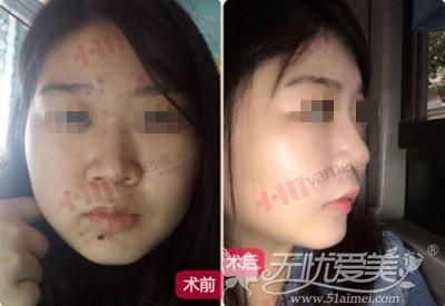 美女在长沙雅美做鼻综合前后对比照片