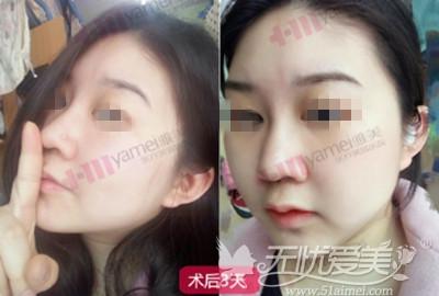 美女在长沙雅美做鼻综合术后3天