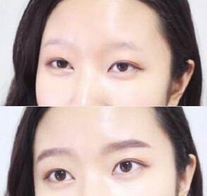 眉毛整形对比案例