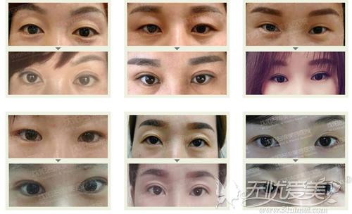 沈阳名流双眼皮手术案例