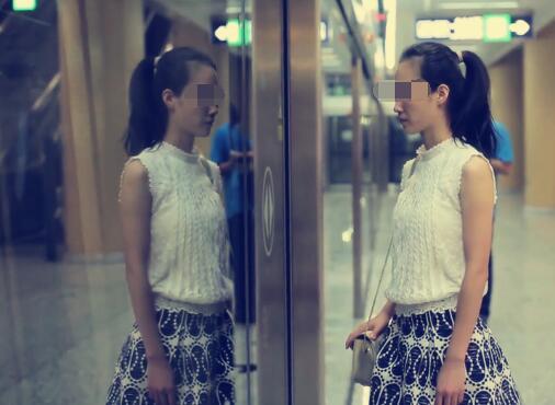 北京新星靓整形FCC面部逆龄精雕术前照片