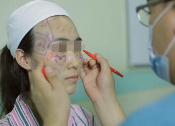 北京新星靓整形FCC面部逆龄精雕手术设计方案