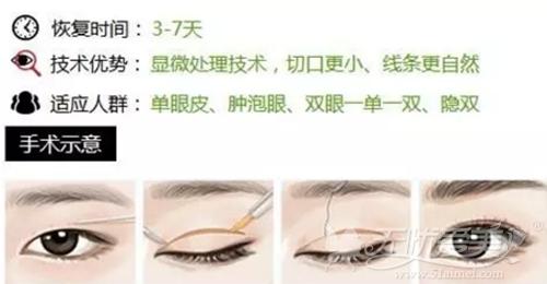 厦门思明安黛美韩式双眼皮整形优惠