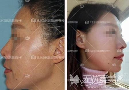 北京京民假体隆鼻手术案例