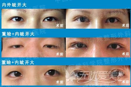 立体皮瓣式缝合法眼部手术案例