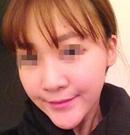 【手术日记】在上海华美做了下巴整形 终于告别我的长下巴