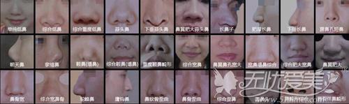 各种鼻型需要用不同的隆鼻方法解决