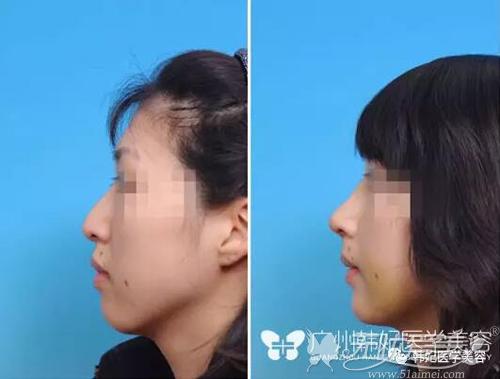 隆鼻前后对比案例